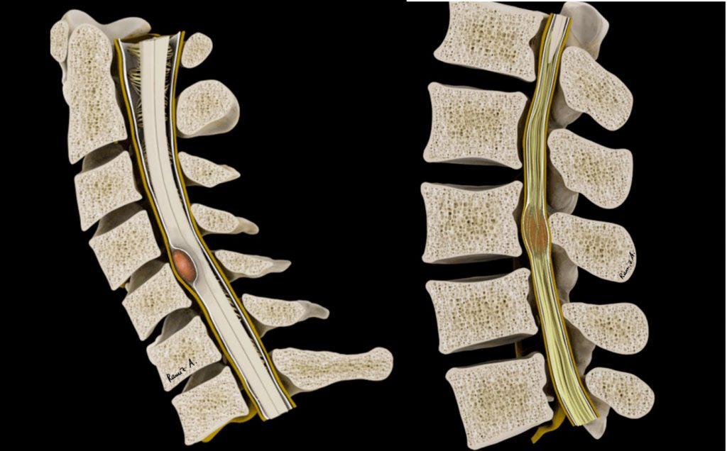spinal tm instr 2