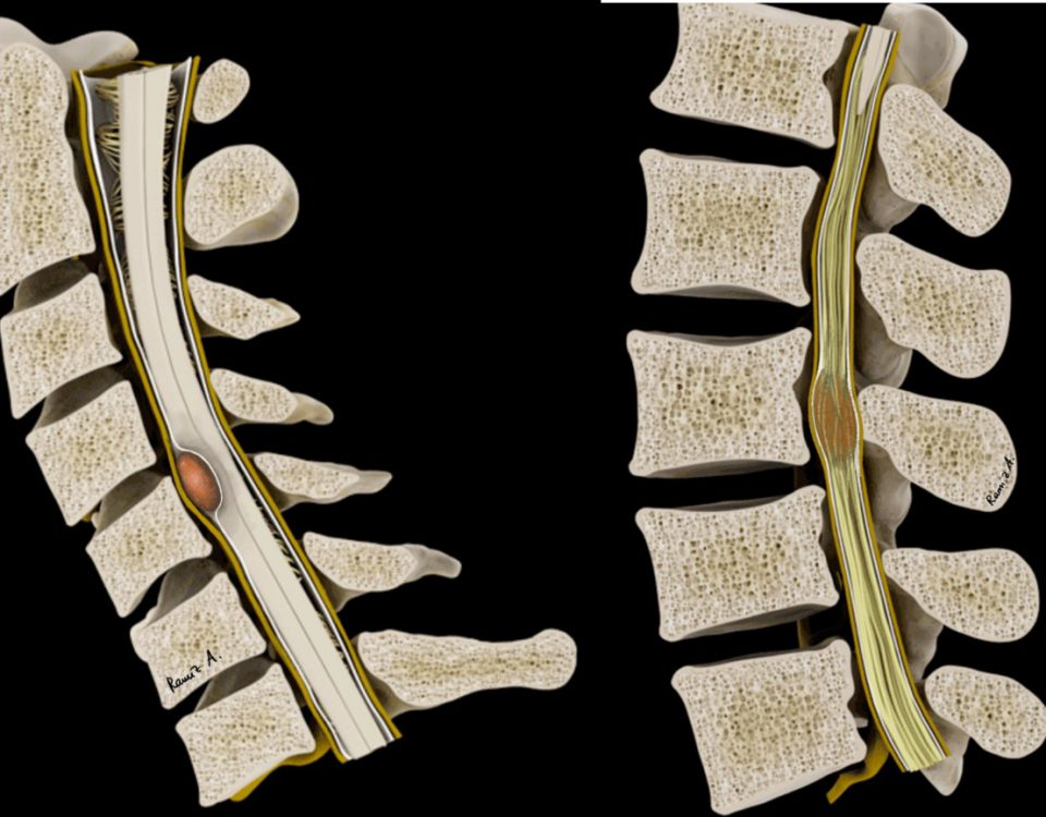 spinal tm instr 2